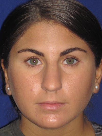 Rhinoplasty Gallery - Patient 4890908 - Image 1