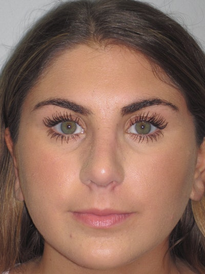 Rhinoplasty Gallery - Patient 4890908 - Image 2