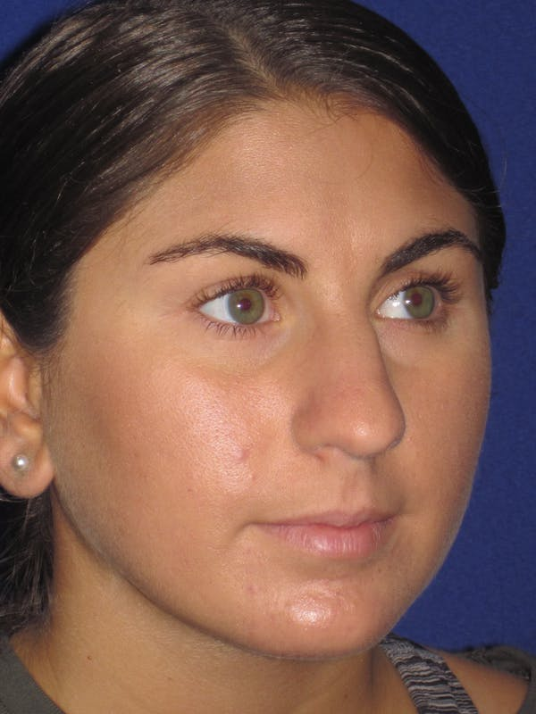 Rhinoplasty Gallery - Patient 4890908 - Image 3