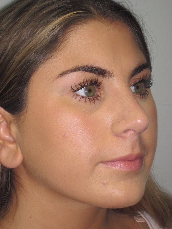 Rhinoplasty Gallery - Patient 4890908 - Image 4