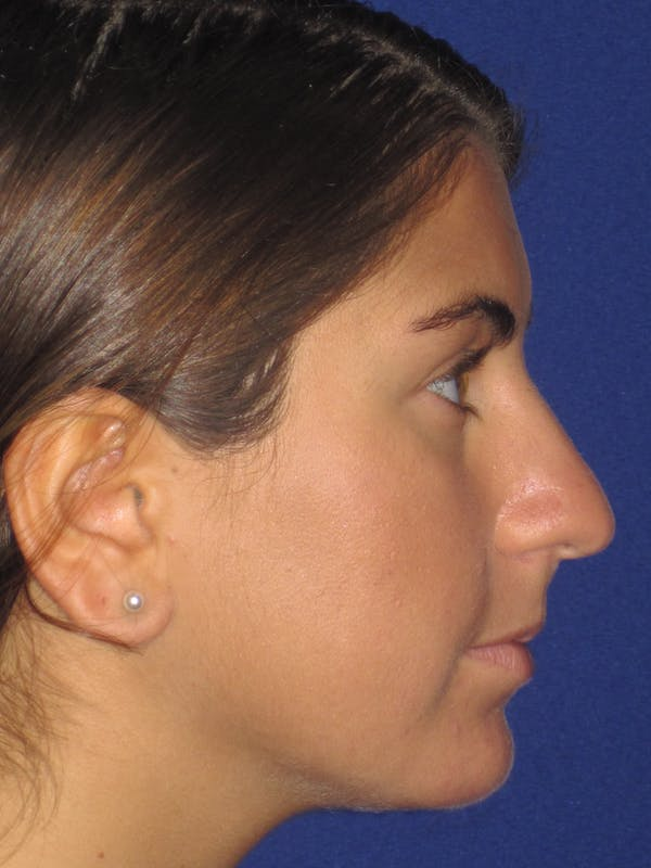 Rhinoplasty Gallery - Patient 4890908 - Image 5