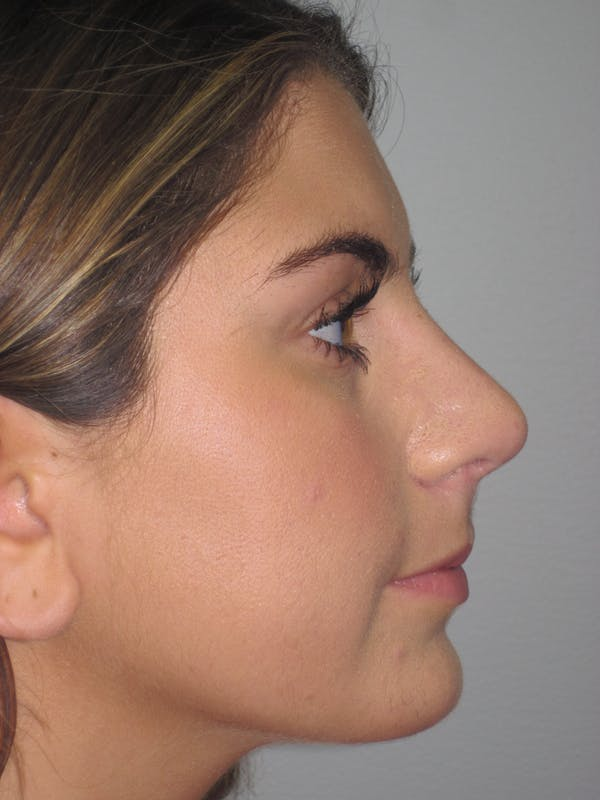 Rhinoplasty Gallery - Patient 4890908 - Image 6