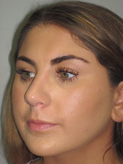 Rhinoplasty Gallery - Patient 4890908 - Image 8