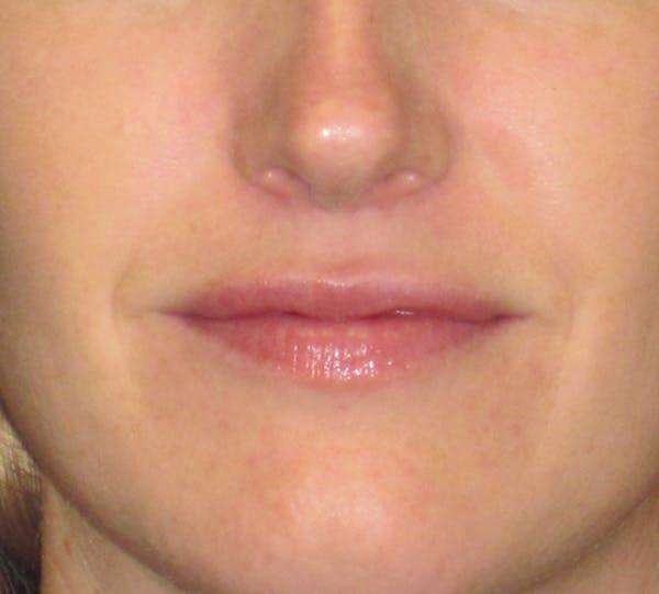 Lip Augmentation Gallery - Patient 4890910 - Image 1