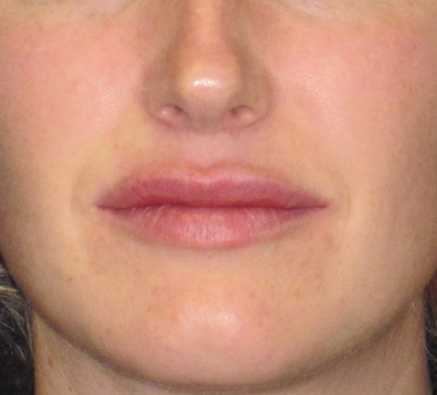 Lip Augmentation Gallery - Patient 4890910 - Image 2