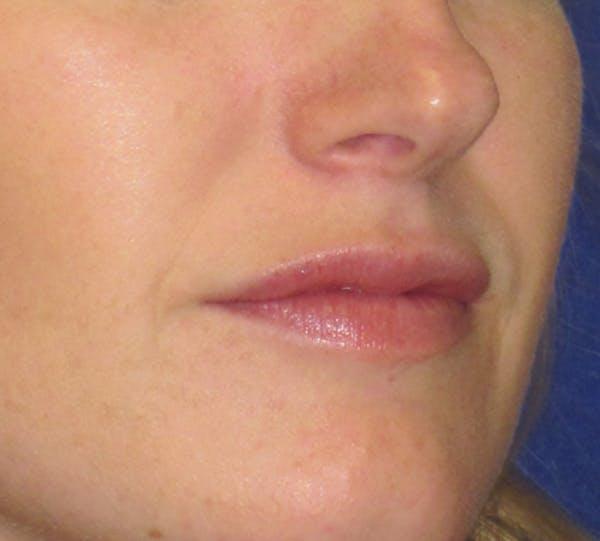 Lip Augmentation Gallery - Patient 4890910 - Image 3