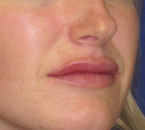 Lip Augmentation Gallery - Patient 4890910 - Image 4