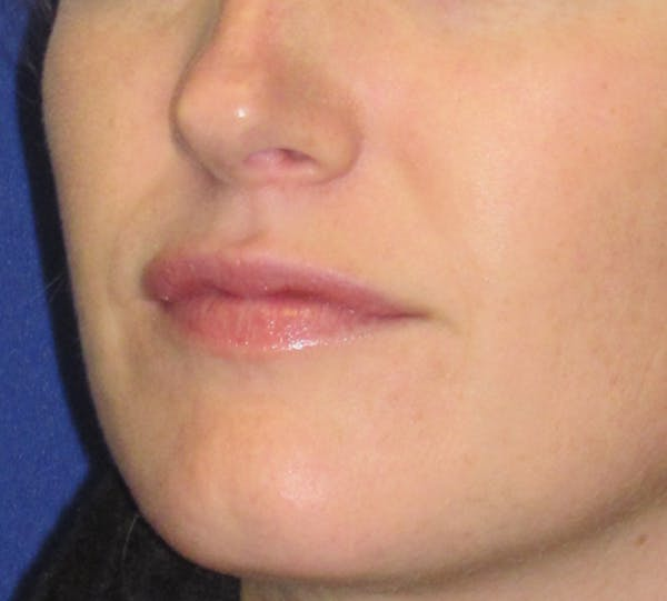 Lip Augmentation Gallery - Patient 4890910 - Image 5