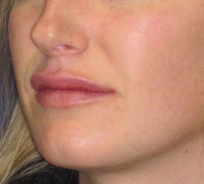 Lip Augmentation Gallery - Patient 4890910 - Image 6