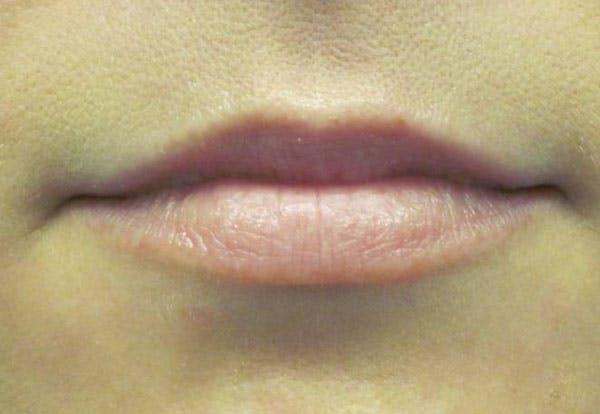 Lip Augmentation Gallery - Patient 4890913 - Image 1