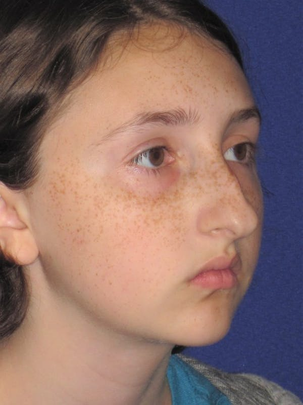 Rhinoplasty Gallery - Patient 4890914 - Image 1