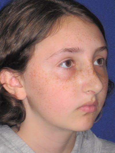 Rhinoplasty Gallery - Patient 4890914 - Image 2