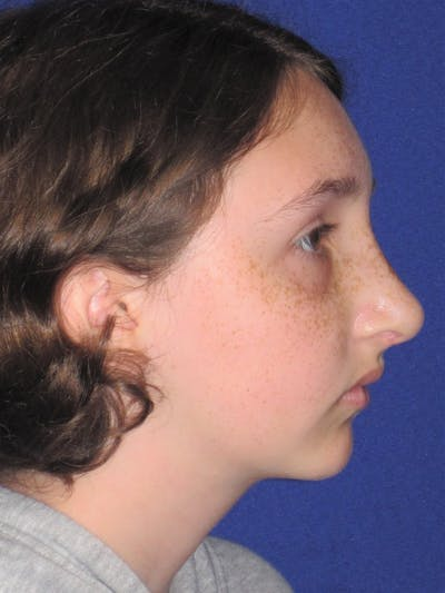 Rhinoplasty Gallery - Patient 4890914 - Image 6