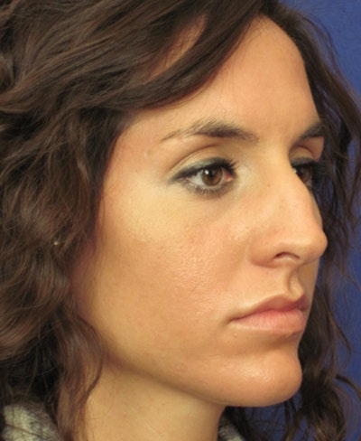 Rhinoplasty Gallery - Patient 4890916 - Image 1