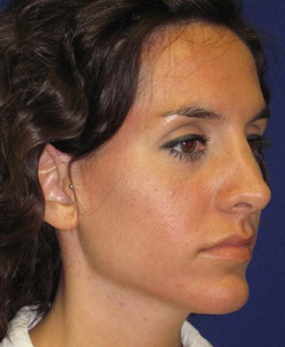 Rhinoplasty Gallery - Patient 4890916 - Image 2