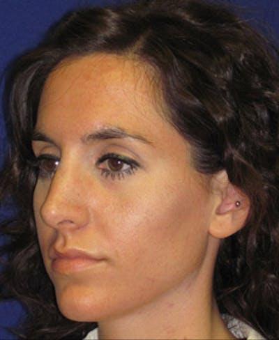 Rhinoplasty Gallery - Patient 4890916 - Image 6