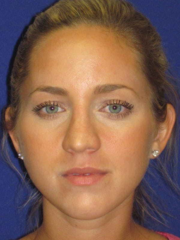 Rhinoplasty Gallery - Patient 4890919 - Image 1