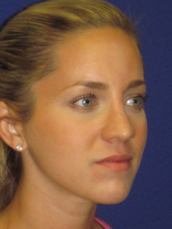 Rhinoplasty Gallery - Patient 4890919 - Image 3