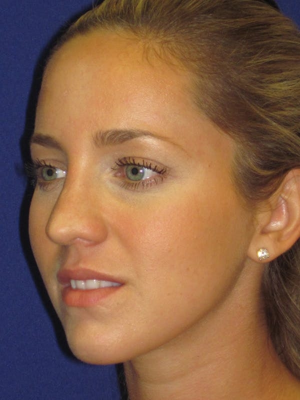 Rhinoplasty Gallery - Patient 4890919 - Image 5