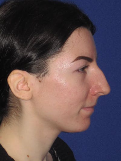 Rhinoplasty Gallery - Patient 4890973 - Image 1