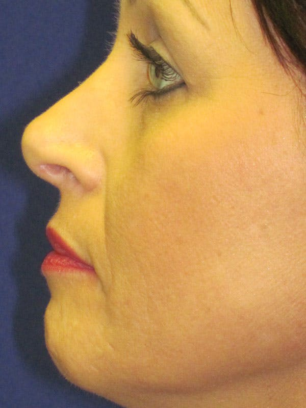 Fat Grafting Gallery - Patient 4890978 - Image 5