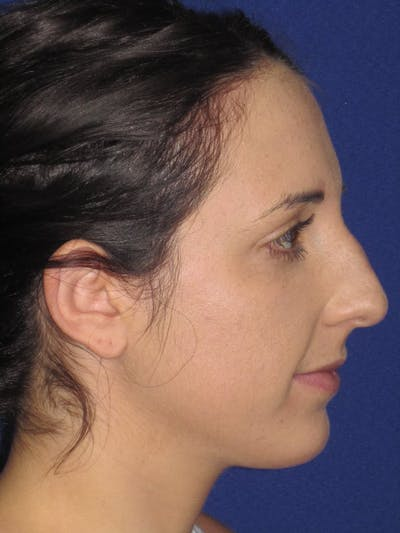 Rhinoplasty Gallery - Patient 4890983 - Image 1