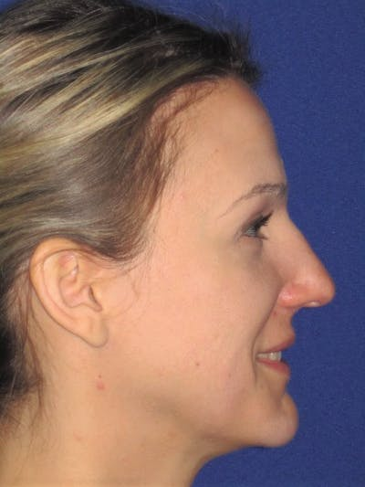 Rhinoplasty Gallery - Patient 4890987 - Image 1