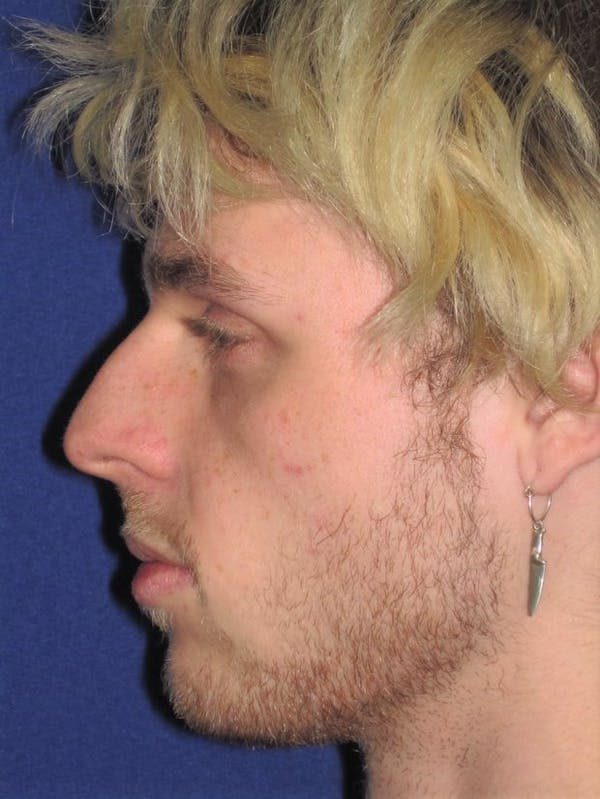 Rhinoplasty Gallery - Patient 4890990 - Image 3