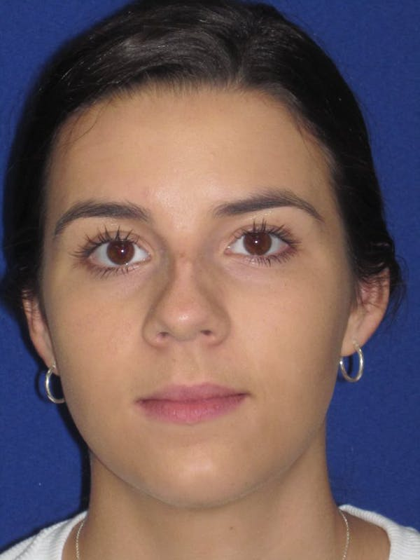 Rhinoplasty Gallery - Patient 4890995 - Image 1