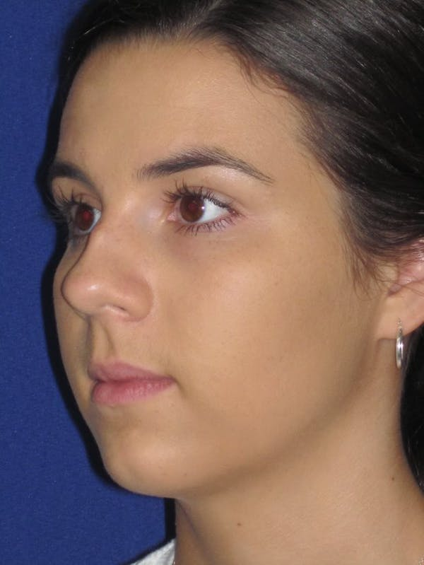Rhinoplasty Gallery - Patient 4890995 - Image 3