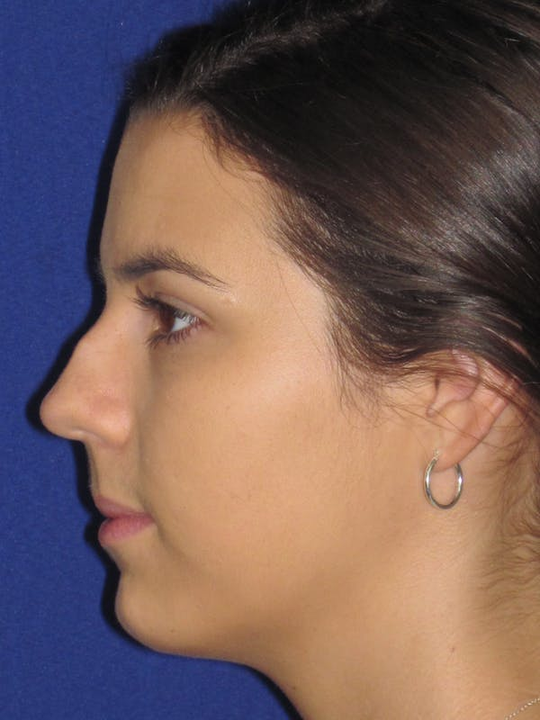 Rhinoplasty Gallery - Patient 4890995 - Image 5