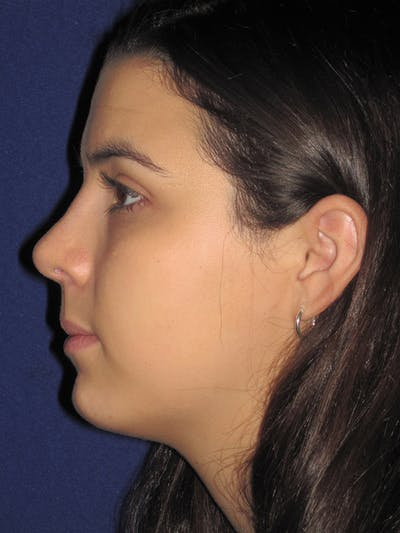 Rhinoplasty Gallery - Patient 4890995 - Image 6