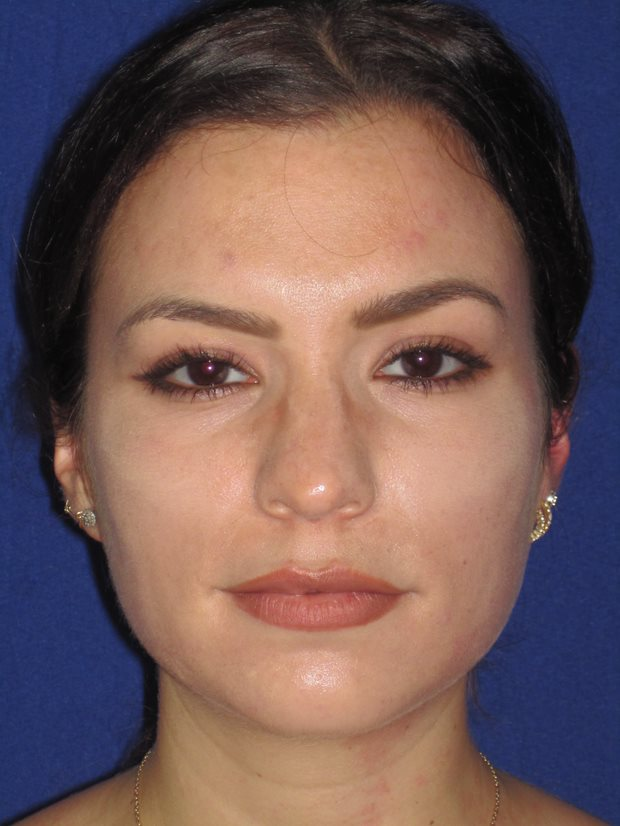 Before and after Wide Nose Rhinoplasty