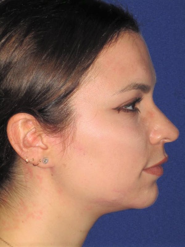 Rhinoplasty Gallery - Patient 4890999 - Image 3