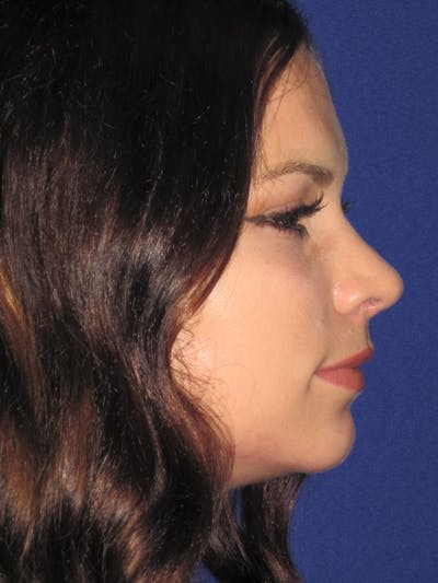 Rhinoplasty Gallery - Patient 4890999 - Image 4