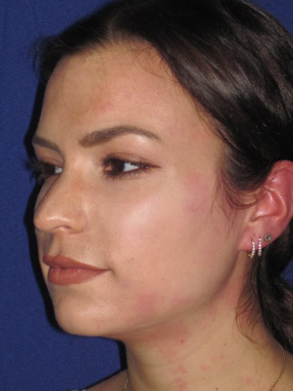 Rhinoplasty Gallery - Patient 4890999 - Image 5