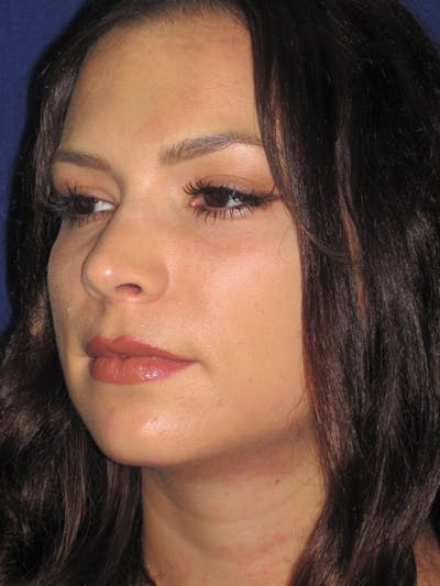 Rhinoplasty Gallery - Patient 4890999 - Image 6