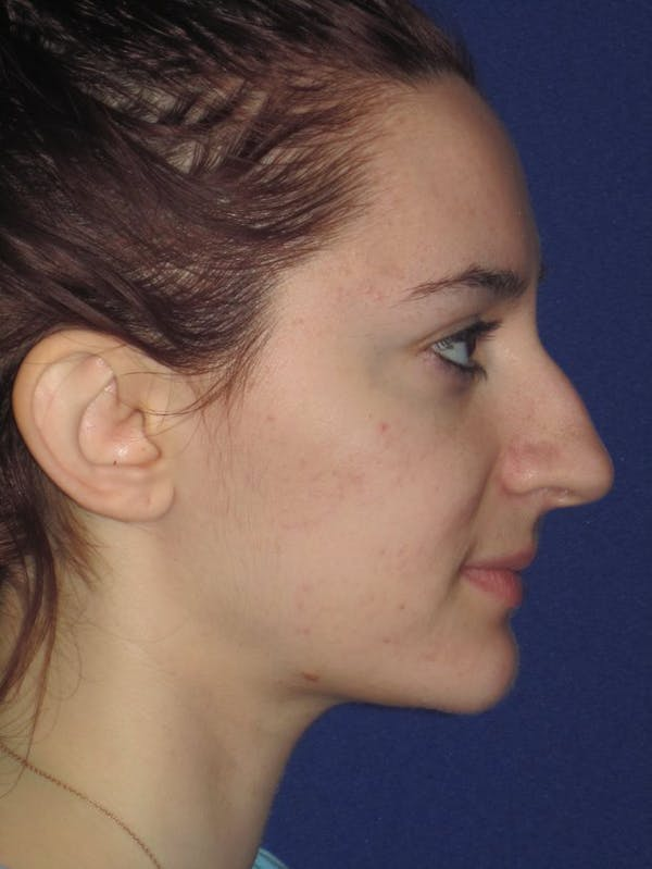 Rhinoplasty Gallery - Patient 4891004 - Image 3