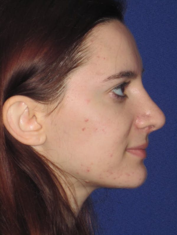 Rhinoplasty Gallery - Patient 4891004 - Image 4