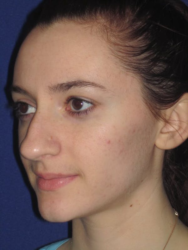 Rhinoplasty Gallery - Patient 4891004 - Image 5