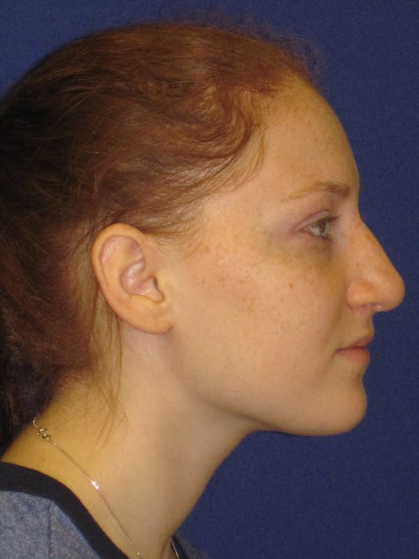 Rhinoplasty Gallery - Patient 4891006 - Image 3