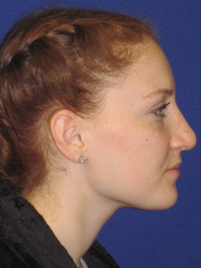 Rhinoplasty Gallery - Patient 4891006 - Image 4