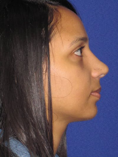 Rhinoplasty Gallery - Patient 4891009 - Image 4