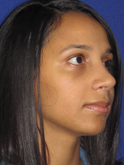 Rhinoplasty Gallery - Patient 4891009 - Image 6