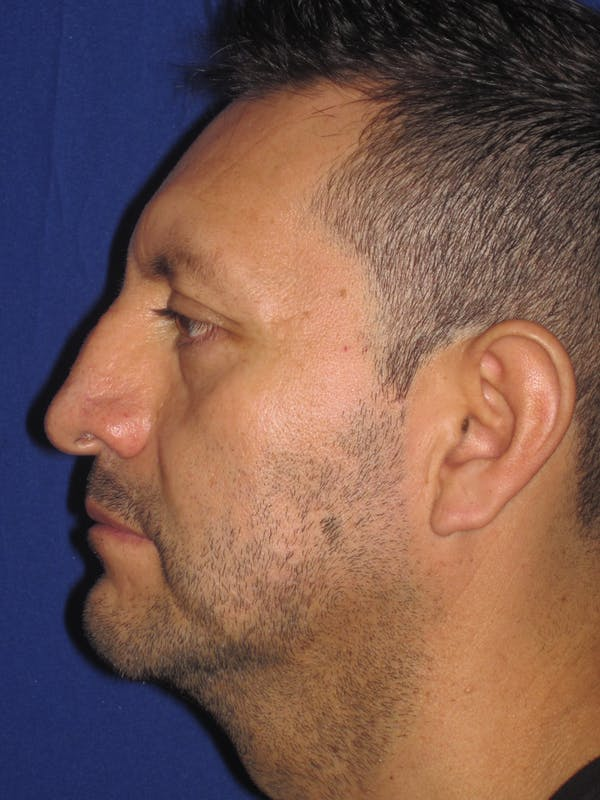 Rhinoplasty Gallery - Patient 4891025 - Image 1