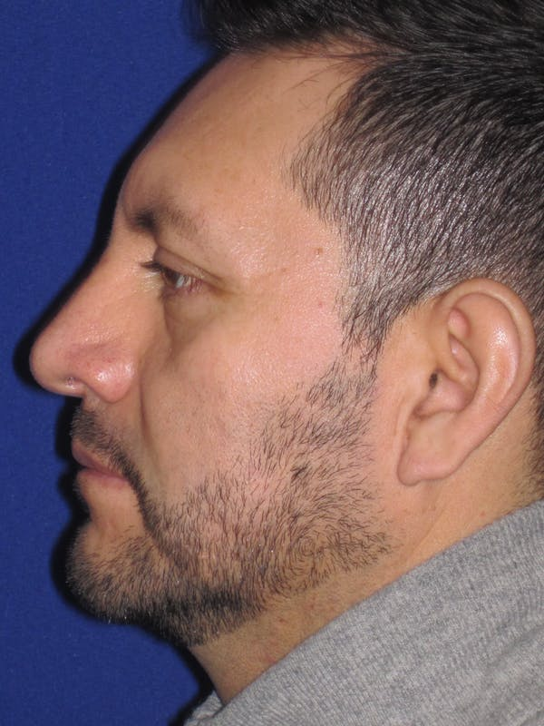 Rhinoplasty Gallery - Patient 4891025 - Image 2