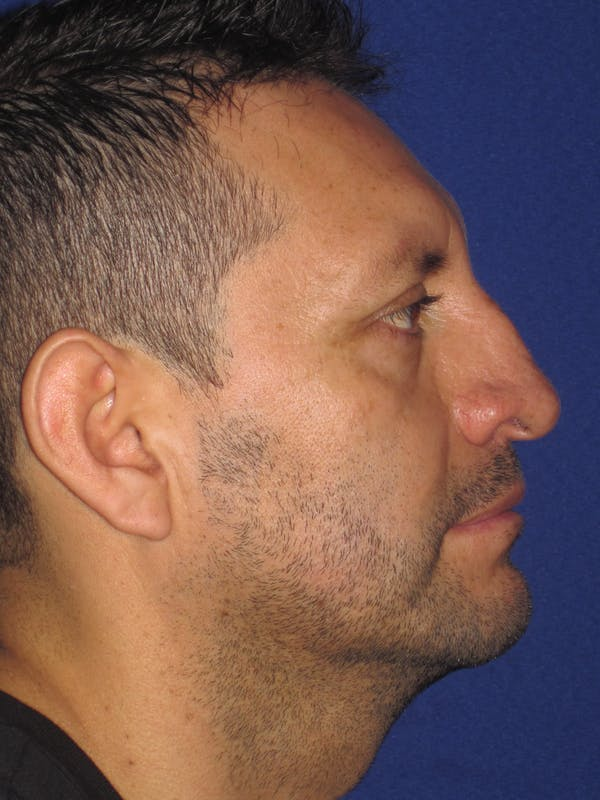 Rhinoplasty Gallery - Patient 4891025 - Image 3