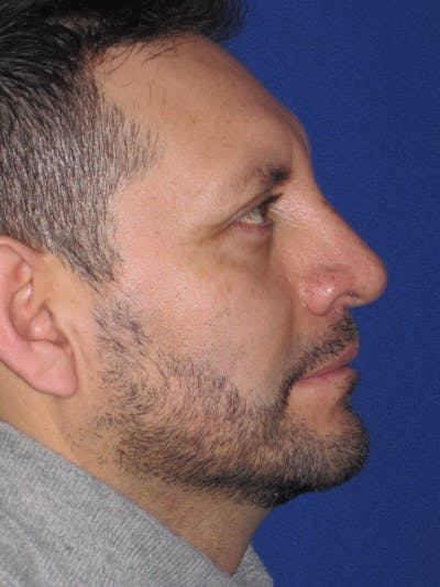 Rhinoplasty Gallery - Patient 4891025 - Image 4