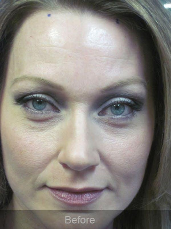 Botox Gallery - Patient 4891032 - Image 1