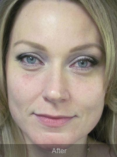 Botox Gallery - Patient 4891032 - Image 2
